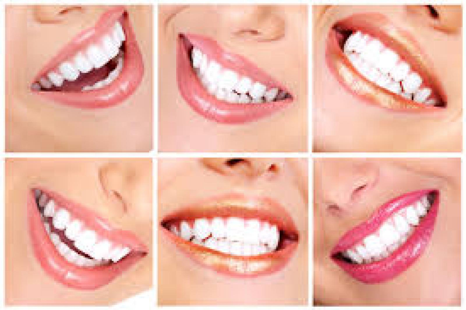 Health Dental Clinic